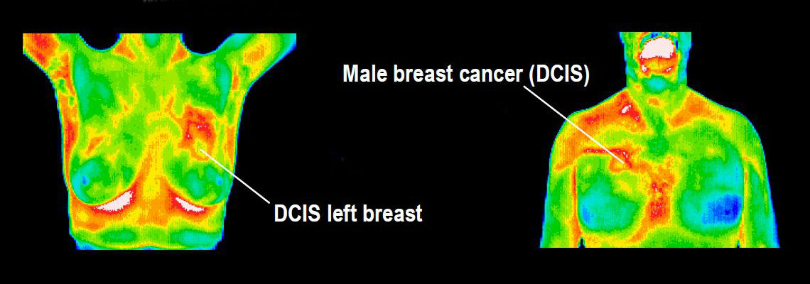 Breast DCIS